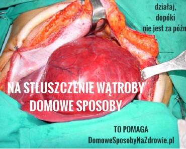 domowesposobynazdrowie.pl-stluszczenie-watroby-domowe-sposoby
